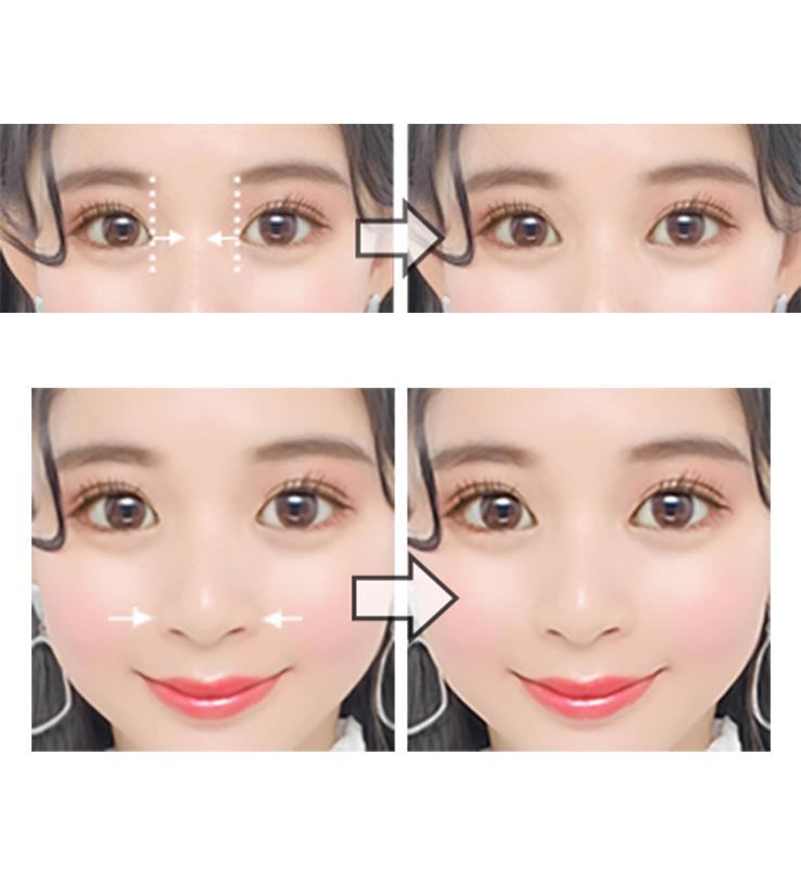 (上)目頭を広げる機能イメージ(下)鼻のサイズを小さくする機能イメージ
